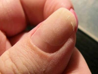 Ремонт ногтя чайным пакетиком, если он надломился