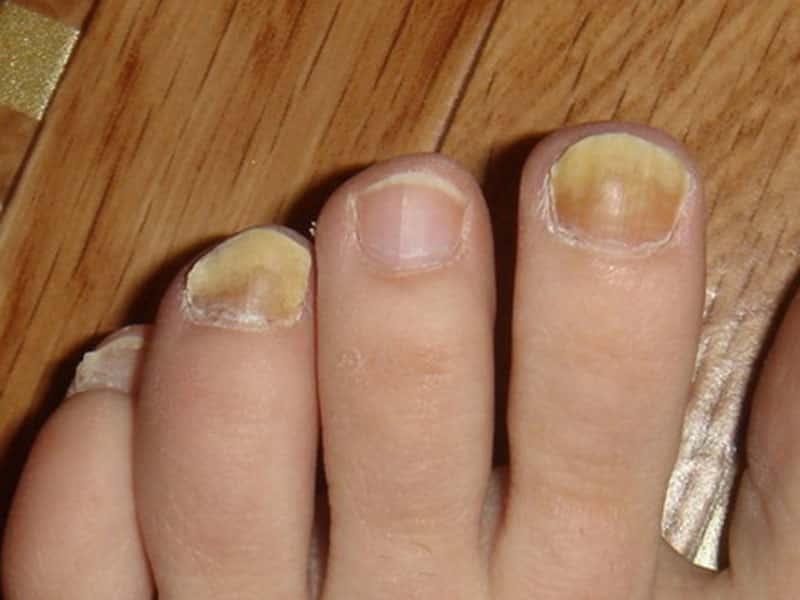 Бактериальное заболевание ногтей на ногах