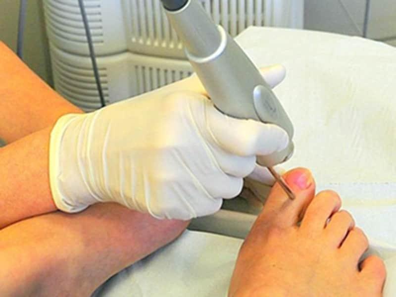 Удаление ногтей пораженных грибком лазером