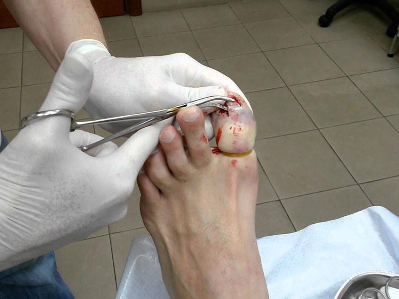 Удаление ногтя при грибке