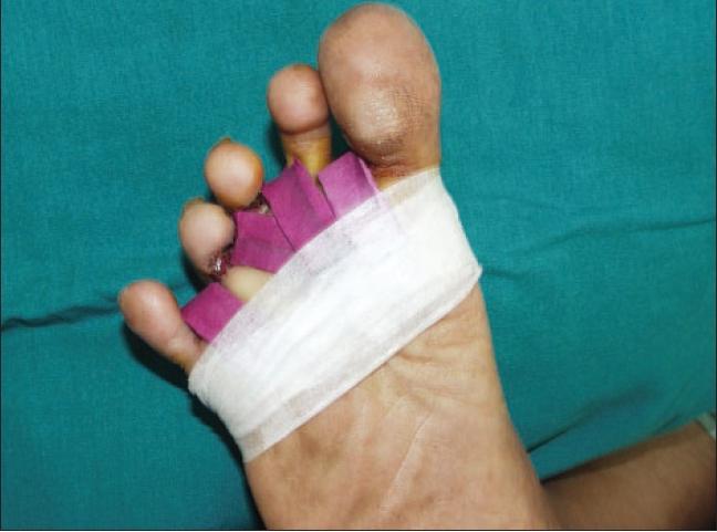 Как лечить грибок ногтей Фукорцином