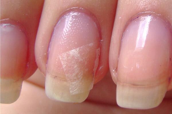 Лечение трещины ногтя