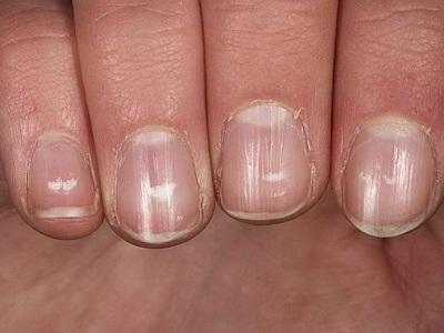 Продольные полосы на ногтях