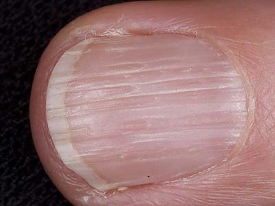 На ногтях появились продольные бороздки