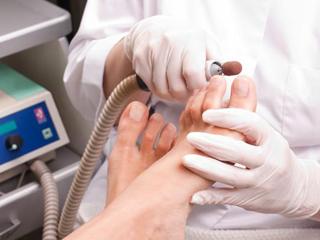 Профессиональный аппаратный педикюр: коррекция ногтей