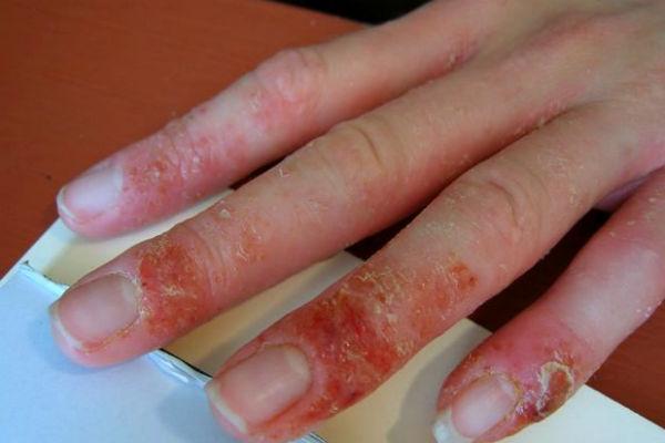 Аллергия на гель-лак чем лечить
