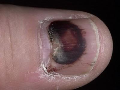 Почернел ноготь на руке в результате ушиба