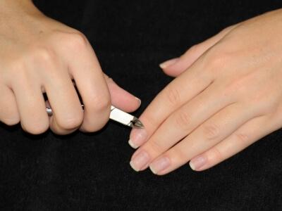 Как выглядят заусенцы на пальцах рук