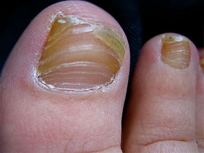 Виферон грибок ногтей - О грибке ногтей