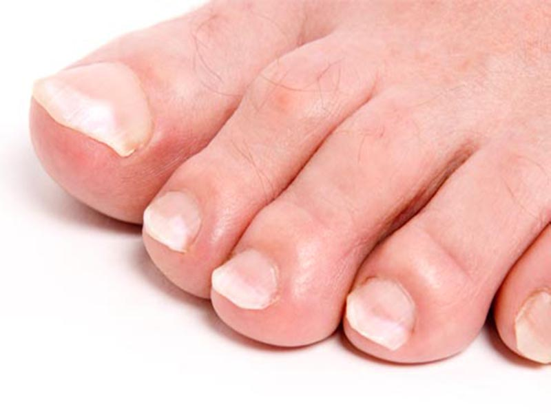 Ногти побелели на ногах