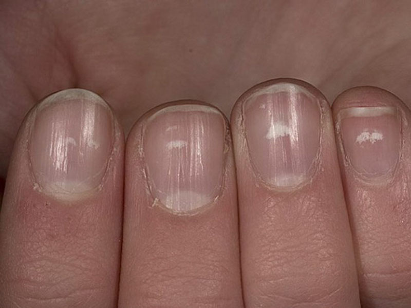 Белые полоски на ногтях ног