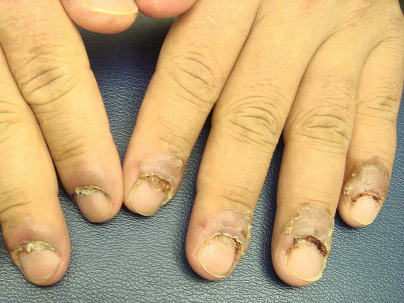Чем вы обезжириваете ногти