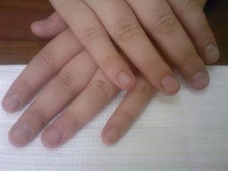 Лечение ногтей от грибка йодом отзывы