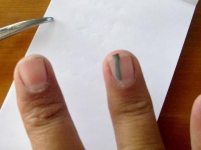 заноза в пальце фото