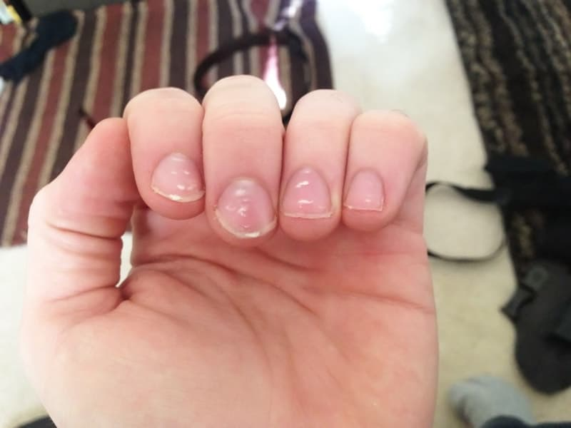 От чего появляется белые пятна на ногтях