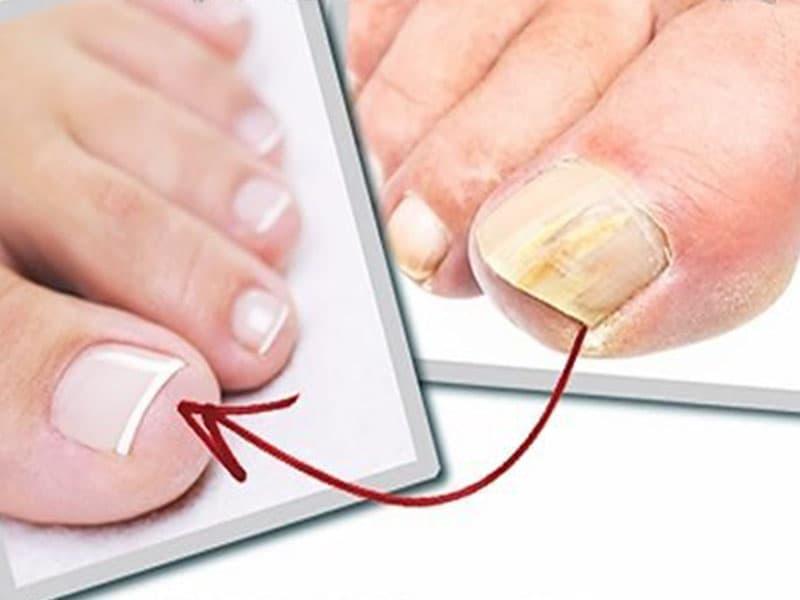 Как вылечить грибок на ногтях ног у ребенка