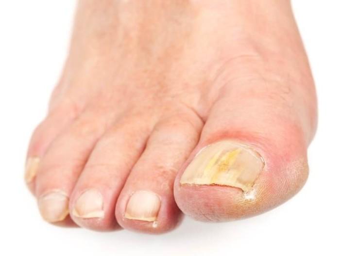 Полости под ногтями причины и лечение
