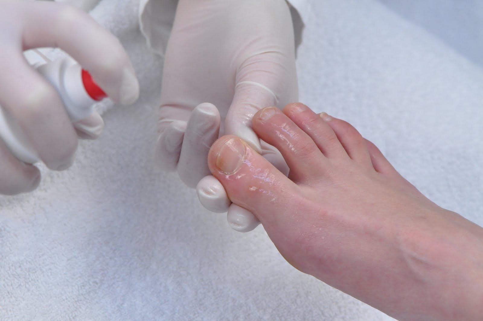Как лечить грибок ногтей и между пальцами