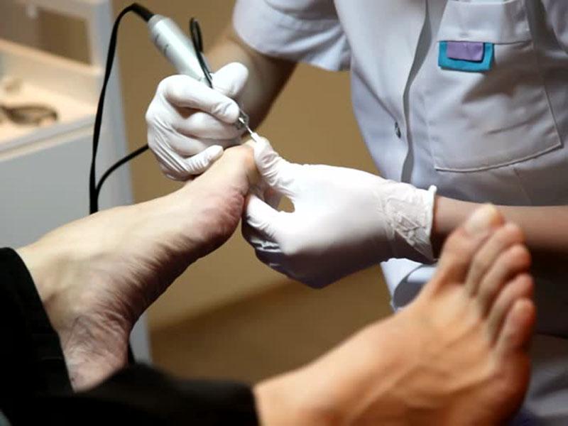 Экзодерил можно ли красить ногти лаком