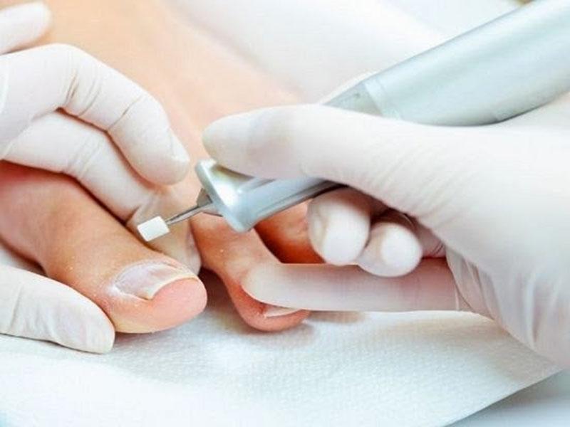 Антибиотик против ногтевого грибка