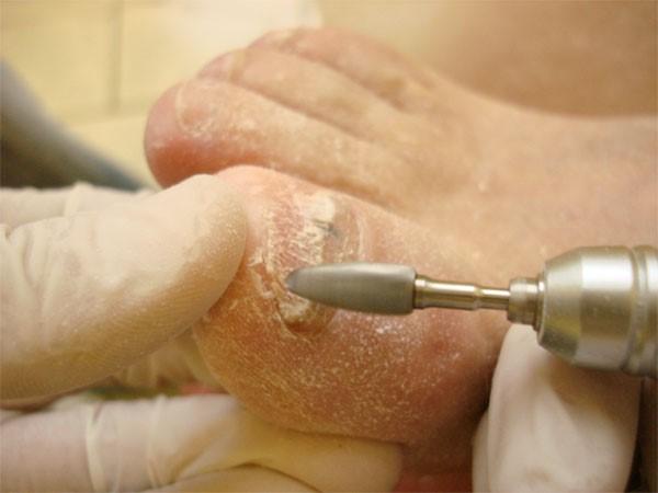 Борозды на ногтях причины лечение