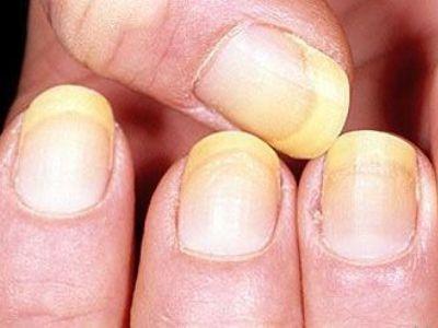 Грибок ногтей на руках - основные признаки