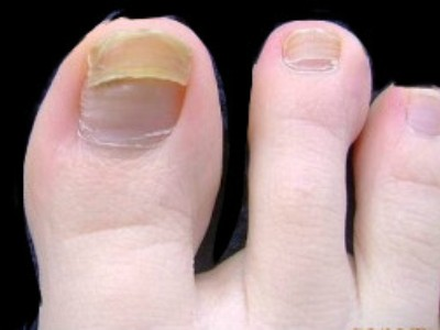 Средства от грибка на ногтях ног экзодерил
