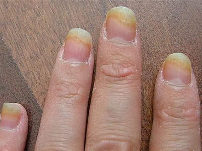 Грибок ногтей на руках фото при шеллаке