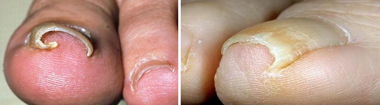 Как выглядит грибок на ногтях ног и рук