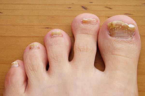 Ногти желтые причины на ногах