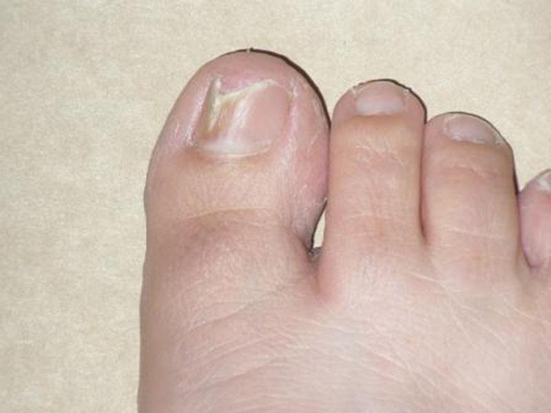 противогрибковые препараты для ногтей недорогие но эффективные