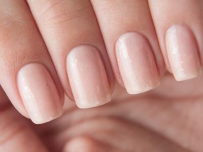 Грибок ногтя в начальной стадии фото