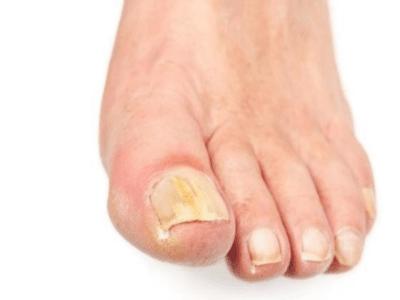 Итразол как принимать при грибке ногтей