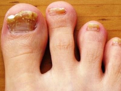 От грибка ногтей низорал