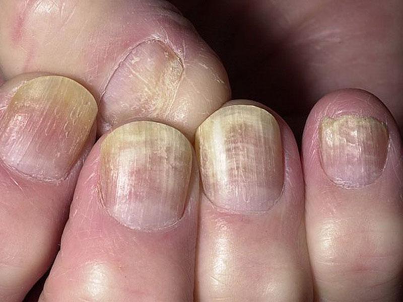 Грибок ногтей клотримазол