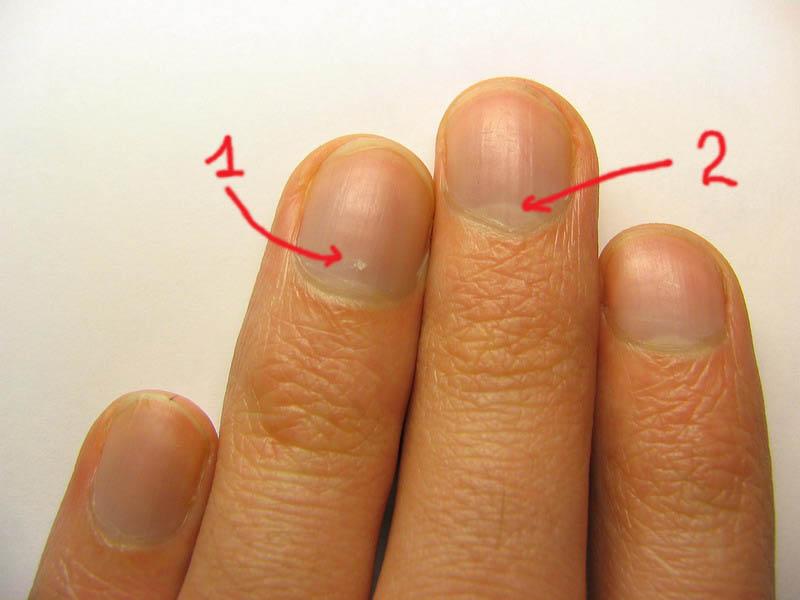 Белые пятна на ногтях рук причины