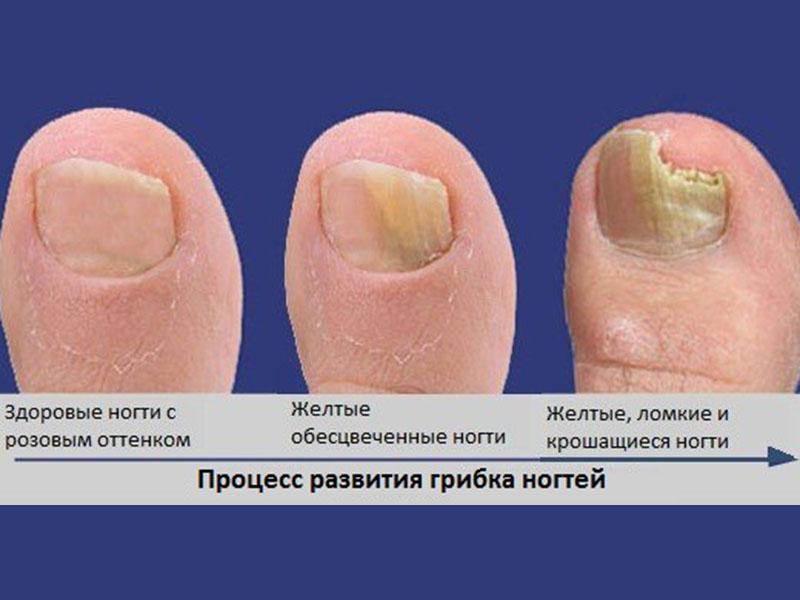 Лекарство для приема внутрь при грибке ногтей