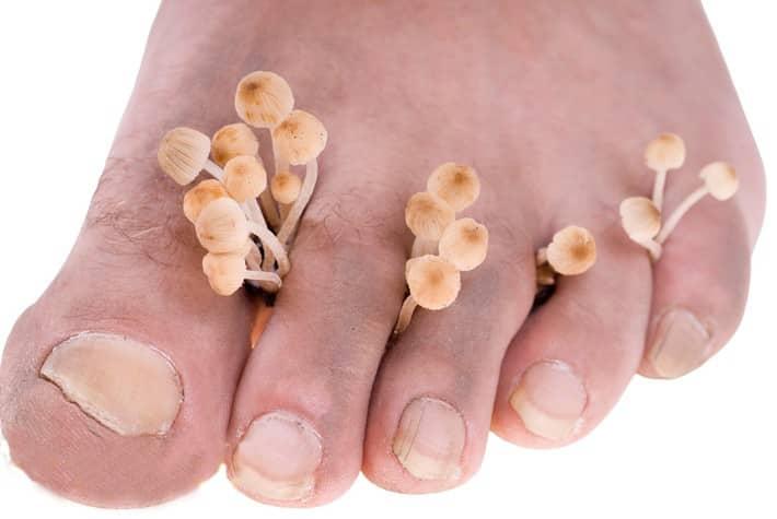 Народные средства при грибке на пальцах ног