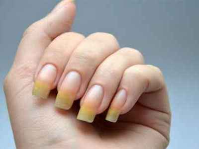 Желтые ногти на руках: причины, признаки и способы устранения проблемы