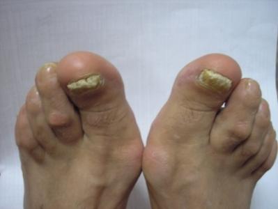 Утолщение ногтя большого пальца ноги фото
