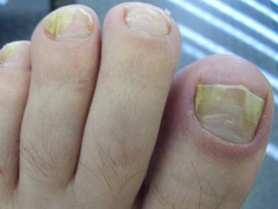 Утолщение ногтя на большом пальце ноги: причины, лечение уплотнения