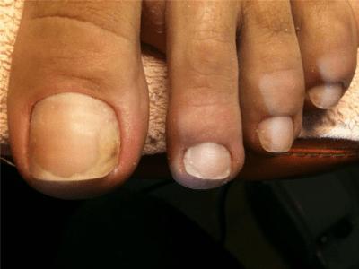 Средство от грибка ногтей на ногах тербинафин