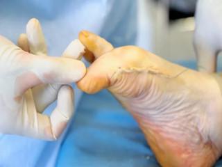 Что делать если растет косточка возле большого пальца ноги