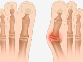 Как образуется косточка на ноге