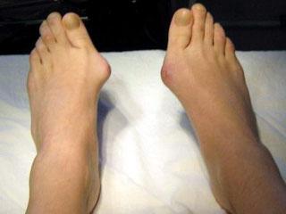 Воспаление косточки на большом пальце ноги - причины и лечение