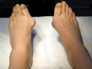 Косточка на ноге операция