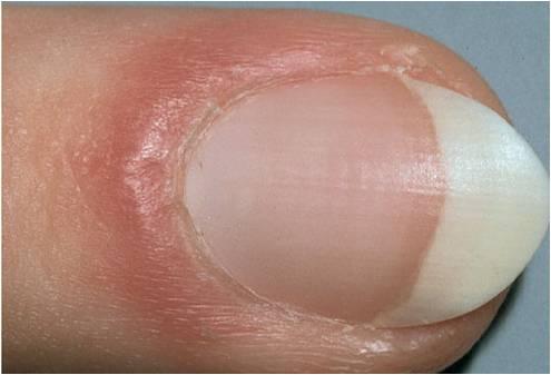 Клиника по лечению грибка ногтей на руках
