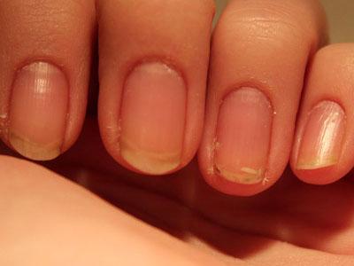 Восстановление ногтей после наращивания.