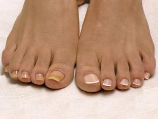 Грибок кожи около ногтя на руках фото