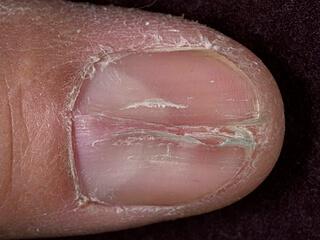 Как вылечить ноготь от грибка на руках